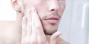 Tanda dan Penyebab Skincare Tidak Cocok Pada Pria, Cek Sekarang!